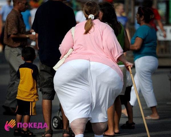 очень толстые в америке
